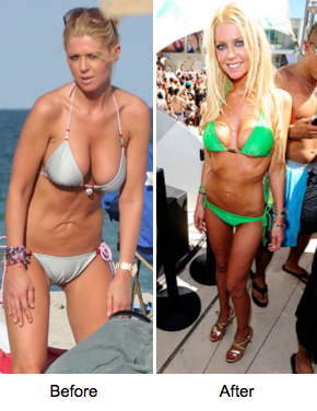 Tara Reid, liposuction, fat grafting, skin dimpling, celebrities, before and after, beauty