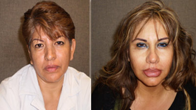 patient dies after silicone injections to buttocks, Viveros sisters, sisters on the run from authorities in california, complications of silicone injections, cheap plastic surgery, awful plastic surgery