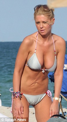 Tara Reid in bikini, pictures of bad liposuction, Tara Reid's botched lipo