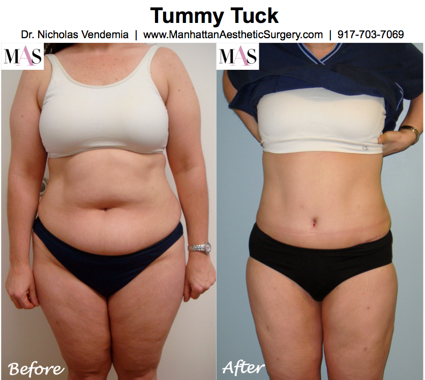 whats better a tummy tuck or liposuction