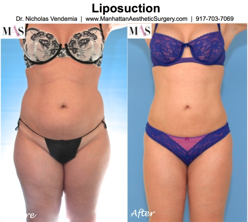liposuction in new york