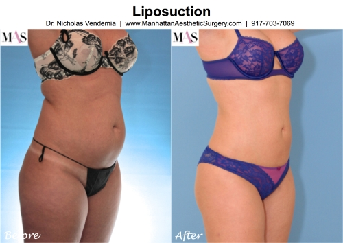 liposuction doctor in new york