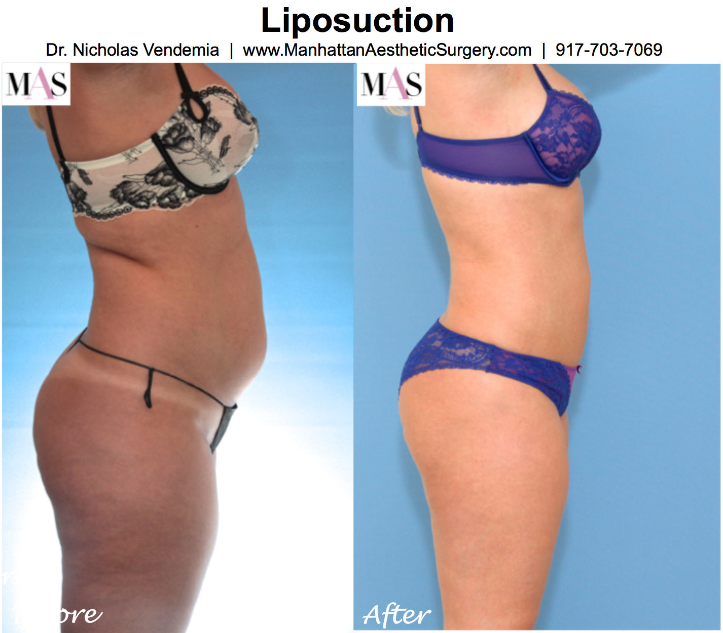 before after better than laser lipo philadelphia photos