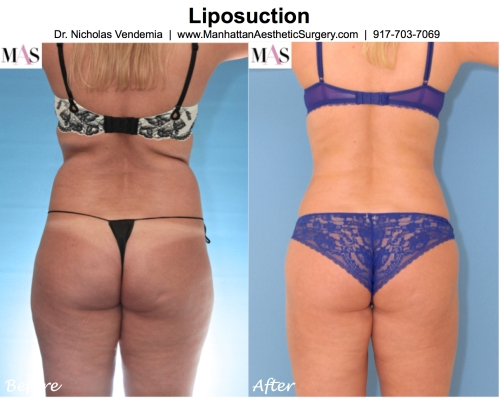 liposuction nyc
